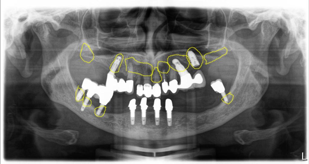 Röntgenbild vorher